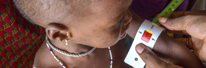 Famine au Nigeria: La vie d'un enfant sauvé