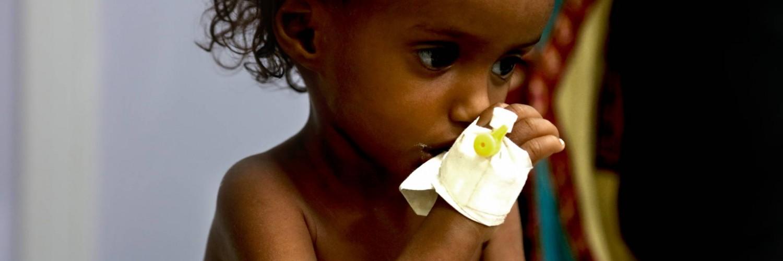 Au Yémen, les enfants meurent de faim
